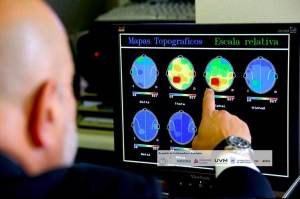 Cuba, China and Canada Tighten Ties for Brain Study